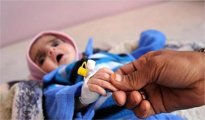 ما هو المرض الخطير الذي قتل  242 يمنيا واصاب 23 ألفا اخرين