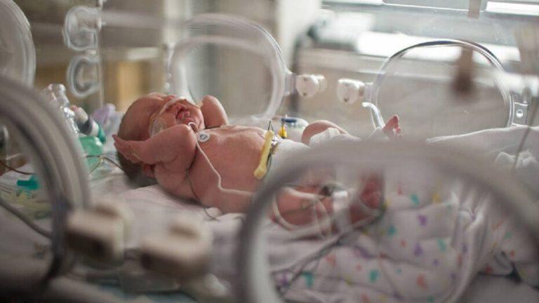 ولادة طفل في إيران مصابا بكورونا