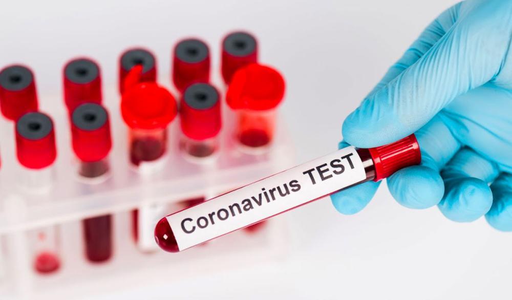 """تعافى نصف المصابين بفيروس كورونا المستجد """"كوفيد-19"""" حول العالم"""