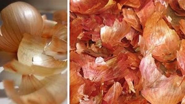 كيف تستفيد من قشور البصل للتنحيف وإزالة السيلوليت؟