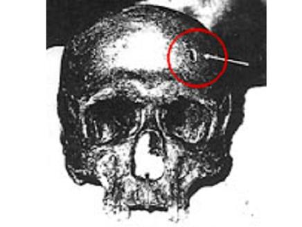 البابا الذي قتلوه بدق مسمار في رأسه لأنه تجرأ واستقال