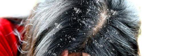 تفسير رؤية قشرة الشعر في المنام