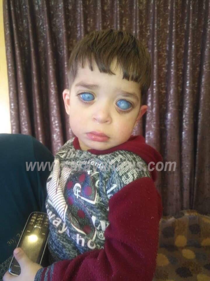 """فيديو محزن ..  ذوو الطفل """"علي"""" يناشدون الجهات المعنية انقاذه قبل حرمانه من نعمة البصر"""