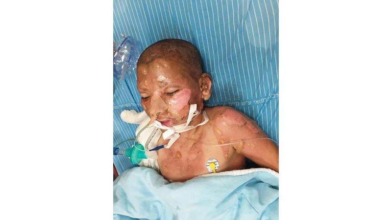 متطرفون يحرقون منزلاً في يافا وإصابة طفلين
