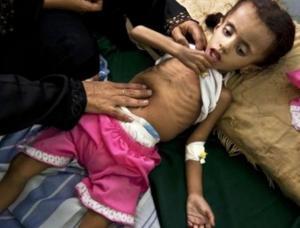اليمن: الموت يتربص بأطفال وحوامل في مستشفى مهدد بالإغلاق