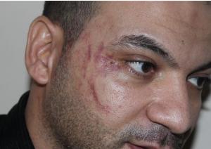السفارة  المصرية تتابع حادثة الاعتداء على احد رعاياها من قبل مرافقي نائب