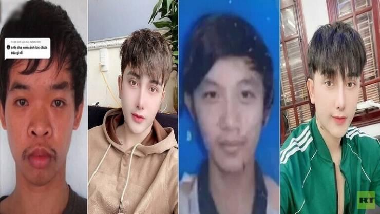 بالصور ..  شاب فيتنامي يجري 9 عمليات تجميل بعد السخرية من شكله خلال مقابلة عمل!