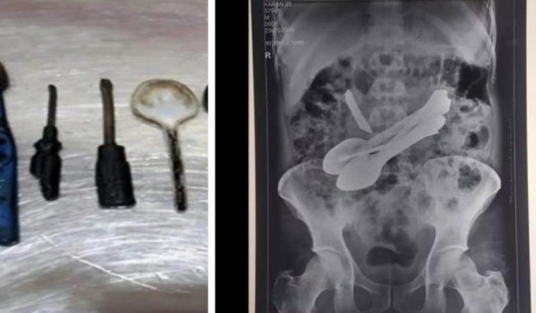 واقعة صادمة ..  العثور على ملاعق وسكين ومفكين في بطن مريض هندي