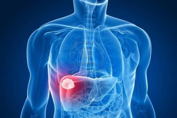 ابتكار جديد لعلاج تليف الكبد