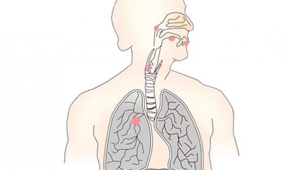 6 أعراض مبكرة لسرطان الرئة يغفلها كثيرون ..  ويمكنها حمايتك من تطور المرض