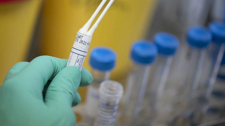 مختبر فرنسي يعلن السماح له باستخدام اختبار سريع لكشف كورونا في أمريكا
