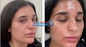 بالصور  ..  علاج غريب في عالم التجميل  ..  تقشير البشرة مثل الأفعى يساهم في علاج العديد من المشاكل