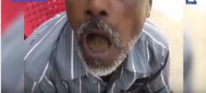 بالفيديو: تعرف على الرجل الذي أدمن على تناول الحجارة!!
