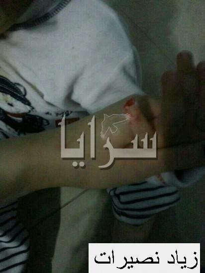 غياب الرقابة في حضانة تتسبب ببتر أصبع طفل أردني ... صور مؤلمة