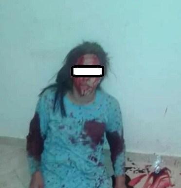 """بالصور  ..  شاب يوجه عدة طعنات لفتاة """"يتيمة"""" من احدى اقاربه لرفضها الزواج منه"""