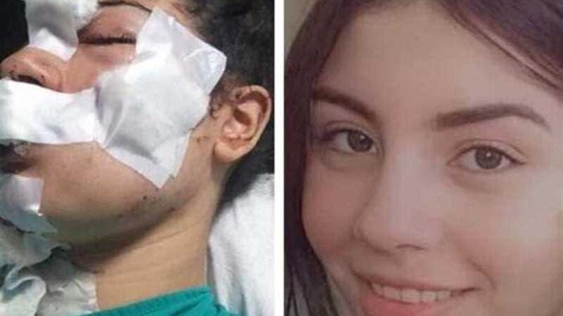 بالصور  ..  بعد أن طعنها وشوه وجهها ..  إسراء عماد تعفو عن زوجها وتعود له!