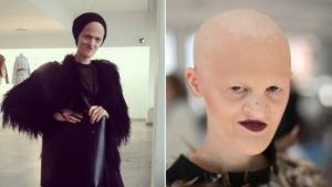 بريطانية صلعاء بلا أسنان تتحول لعارضة أزياء ناجحة