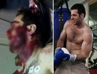 تيمورلانك توفي متأثراً بطلقات نارية في الجذع والأطراف وصدمة في الرأس