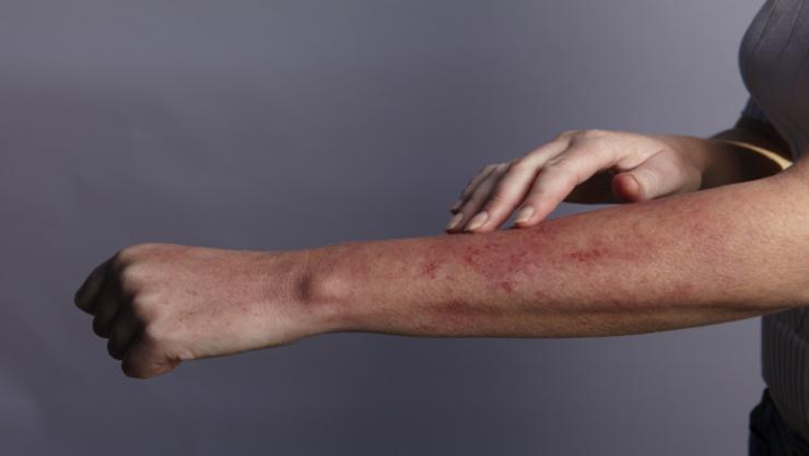 آفات جلدية لدى مرضى 'كوفيد-19' قد تكون علامة على مشكلة صحية أخرى كامنة