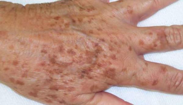 """لماذا تظهر البقع البنية على أيدي """"كبار السن""""؟"""