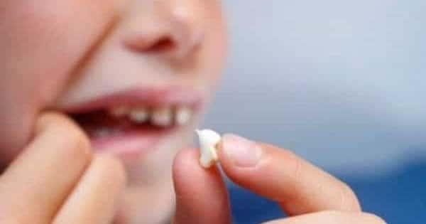 تفسير حلم تكسر الاسنان في المنام