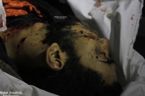 صور وفيديو  ..  شهيدان و 3 اصابات في قصف اسرائيلي شمال غزة