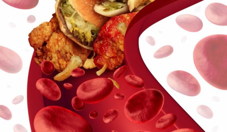 """""""فرط كوليسترول الدم العائلي"""" ..  اضطراب وراثي يسبب أمراض القلب المبكرة"""