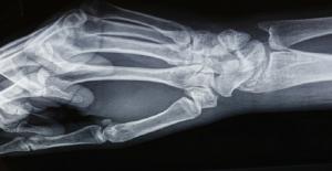 """حالة طبية نادرة تسبب """"اختفاء"""" عظام أصابع امرأة"""