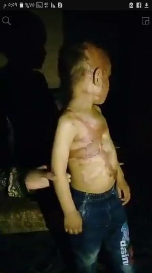 أمام رئيس الديوان الملكي : الطفل حمزة الرياحنه يصارع الموت في غرفة مظلمة  ..  صور