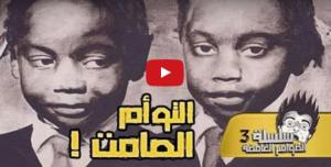 بالفيديو: التوأم الأكثرغموضا في التاريخ!