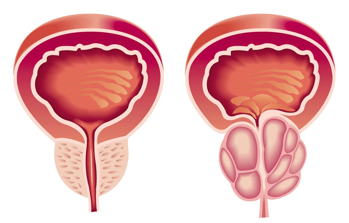 تضخم البروستاتا الحميد  ..  أعراضه وأسبابه و طرق علاجه
