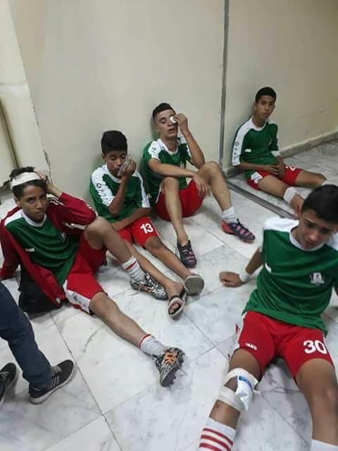 بالصور  .. إصابة 7 من ناشئي الوحدات إثر الاعتداء على حافلتهم بعد انتهاء المباراة