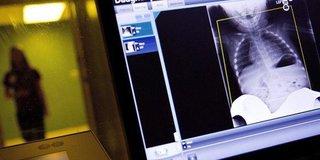 الأشعة المقطعية قد تصيبك بالسرطان