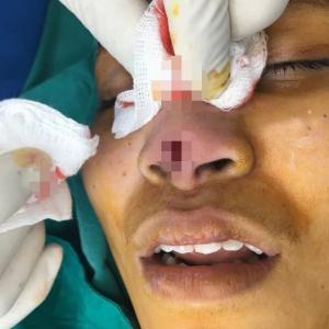عملية تجميل في أنف امرأة تنتهي بكارثة