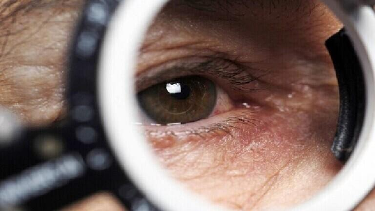 لماذا تتفاعل العيون مع أمراض البرد؟