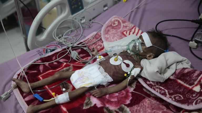 16 مليون يمني يسيرون نحو المجاعة