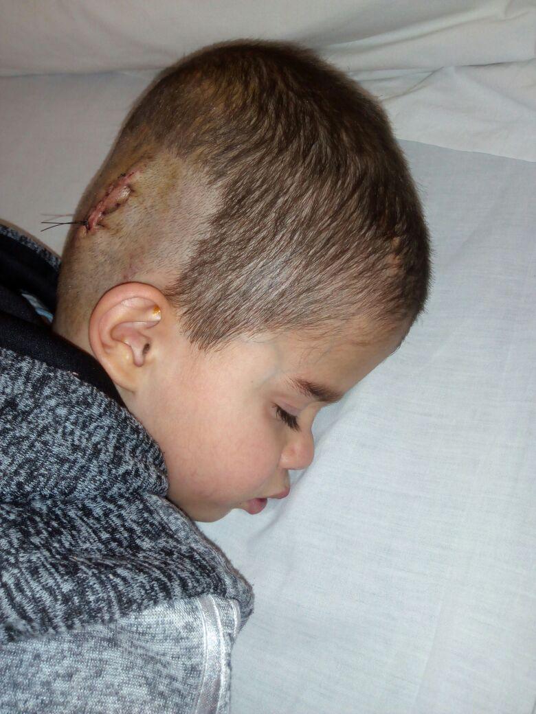 """""""براء """"طفل يعاني من شلل دماغي ..  ويناشد اهل الخير للمساعدة باتمام علاجه"""