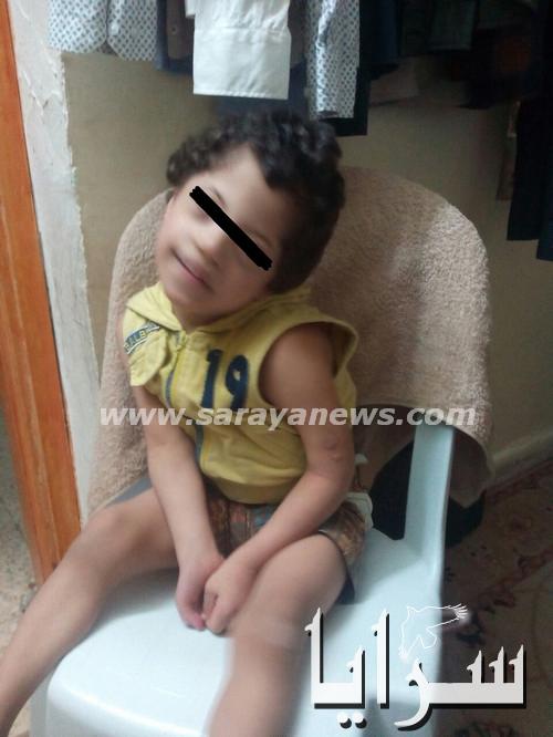 ام طفلها معاق تستصرخ اهل الخير من اجل مساعدتها فهل من مجيب ؟
