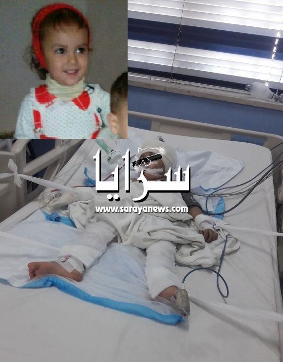 """بالصور  ..   الطفلة """"منار""""  بين الحياة والموت بعد سقوط التلفاز  عليها"""