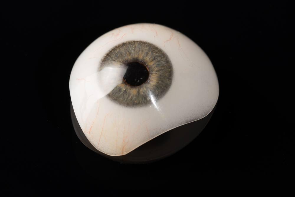 طفلة تناشد اهل الخير تركيب عين اصطناعية لها  ..  تفاصيل