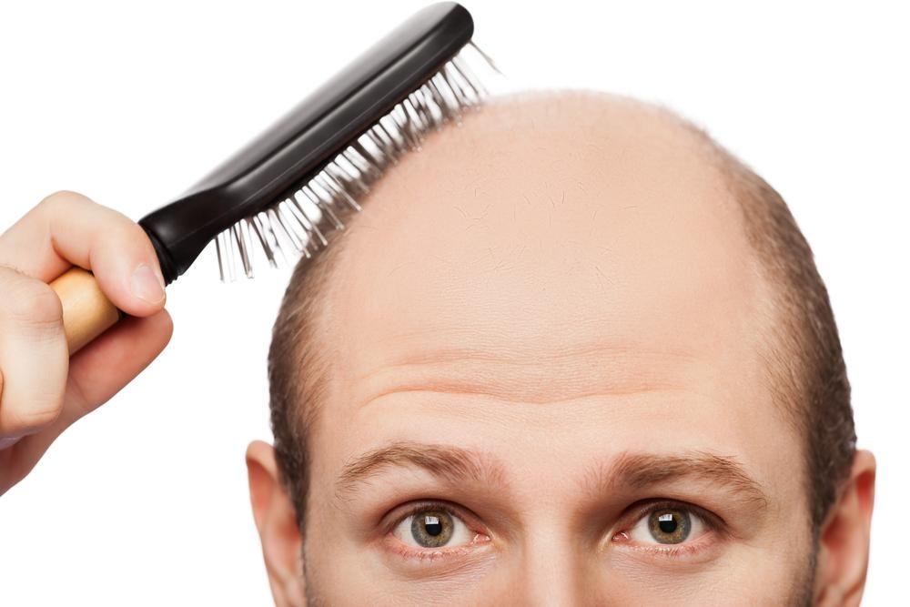 خرافات تساقط الشعر