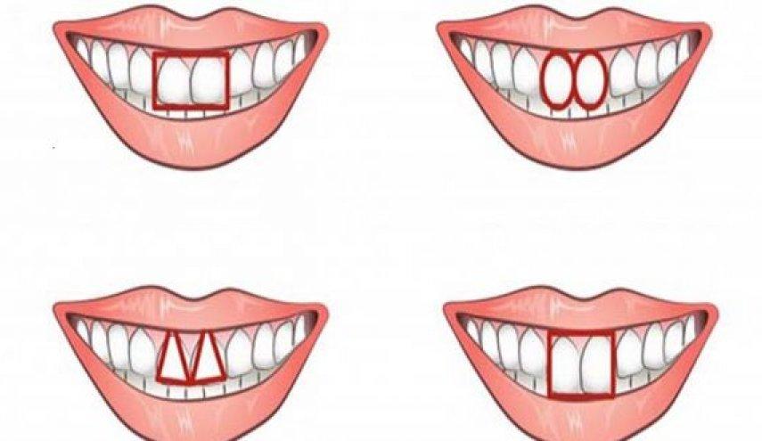 'أرني أسنانك وسأخبرك من أنت' .. تعرف على الآخرين من أسنانهم