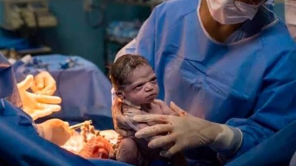 """طفلة ولدت """"عاتبة"""" على الطبيب الذي أخرجها إلى العالم"""