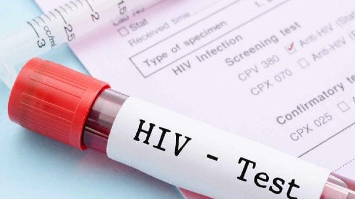 أمريكا ..  شفاء رجل مصاب بالإيدز بعد تناوله دواء تجريبيا