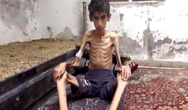 وفاة جديدة من الجوع في مضايا