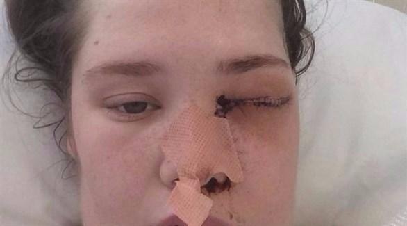 سيدة بريطانية تفقد عينها بسبب الميكروويف
