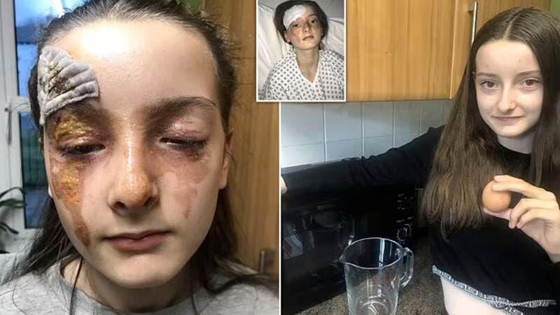 بصور مروعة  ..  طفلة تتحوَّل إلى دراكولا بعد انفجار بيضة في وجهها