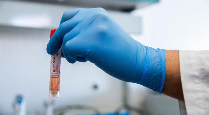 روسيا: علاج كورونا باستخدام العقار المضاد للملاريا