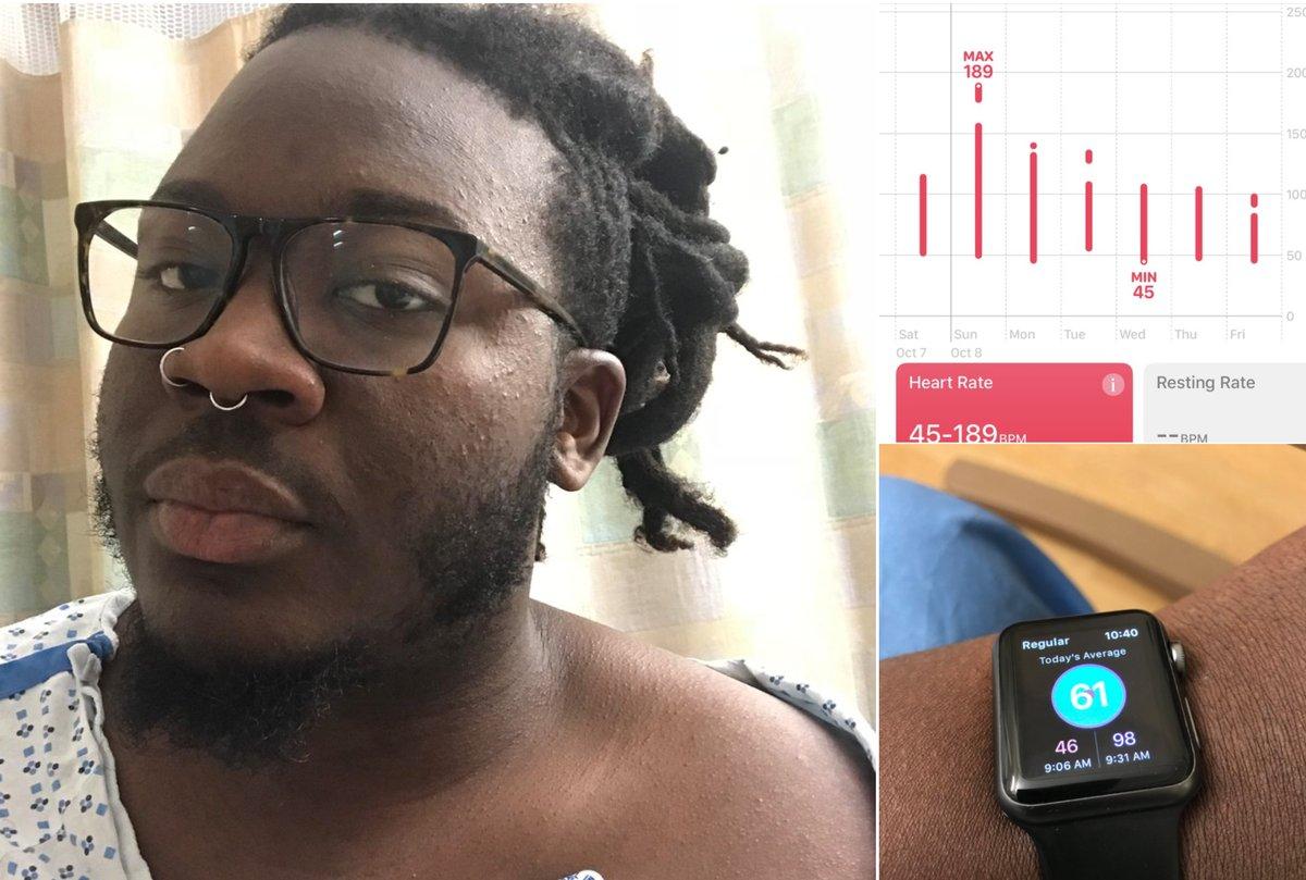 ساعة آبل الذكية تُنقذ أحد مُستخدميها من انسداد رئوي قاتل