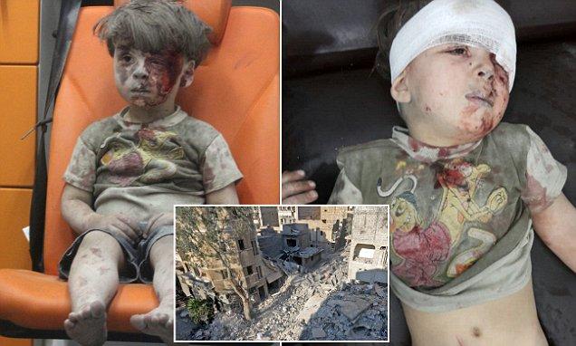 متى بكى الطفل  السوري عمران الذي حركت صورته العالم؟